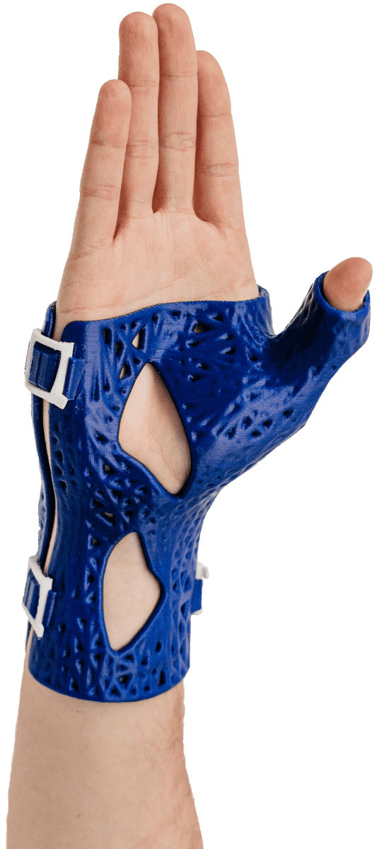 CastPrint for scaphoid fractures